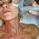 Vårfräsch hud